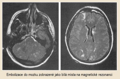 Vícečetné infarkty v MR zobrazení v důsledku opakovaných embolizací